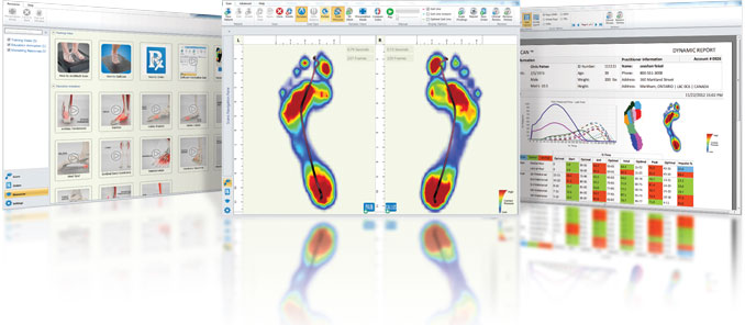Foot scan for orthotics